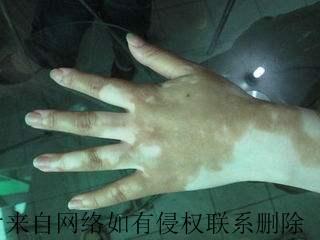 手部白癜风引发的原因有什么