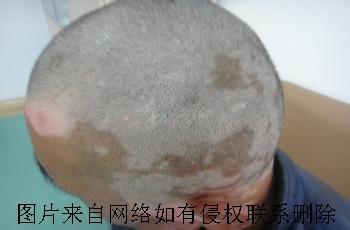 毛囊型白癜风有什么症状